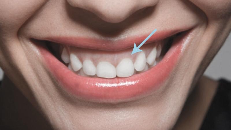 dentes pequenos gengivoplastia