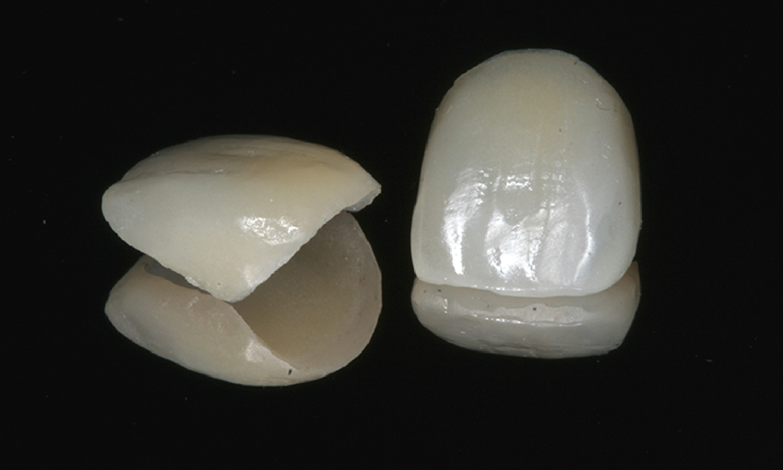 laminado cerâmico tipo faceta de porcelana