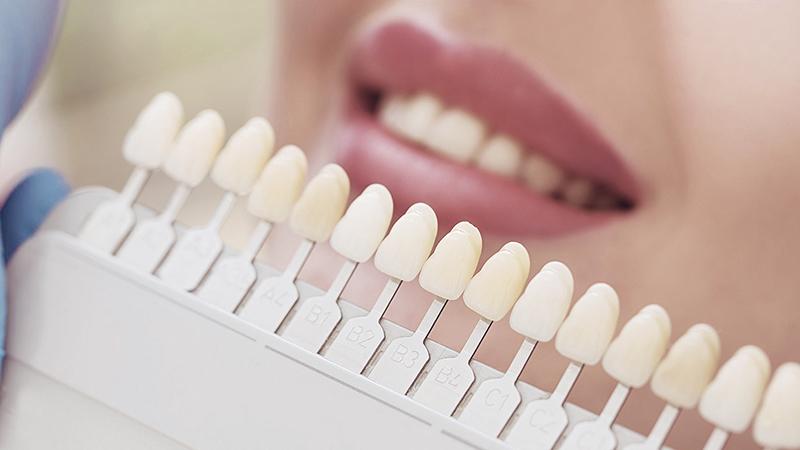prótese dentária fixa tratamento