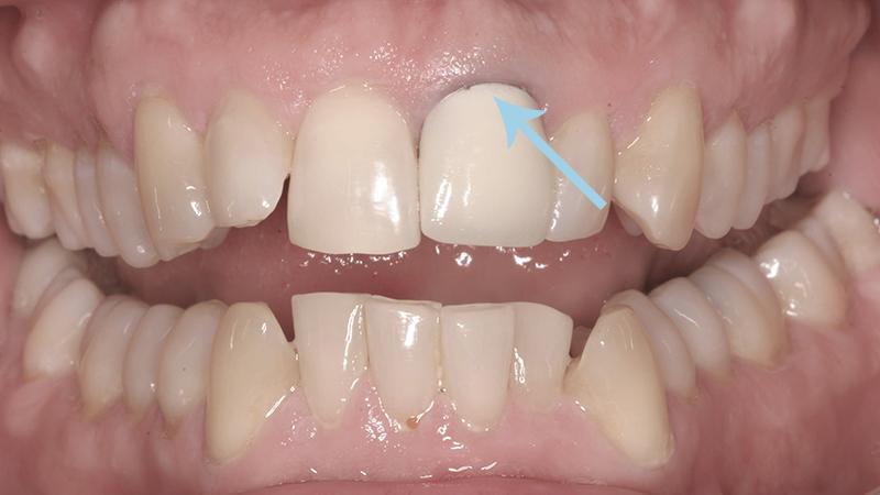 problemas protese dentaria com metal gengivas