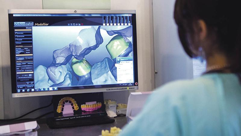 protese dentaria fixa computadorizada