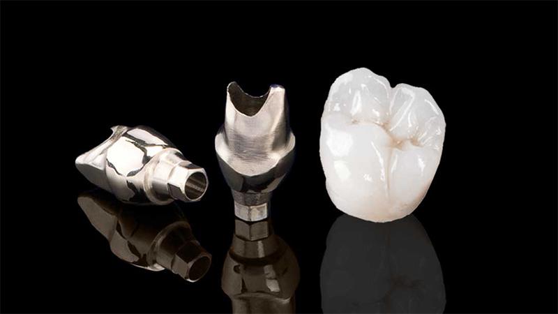protese dentaria fixa metaloceramica