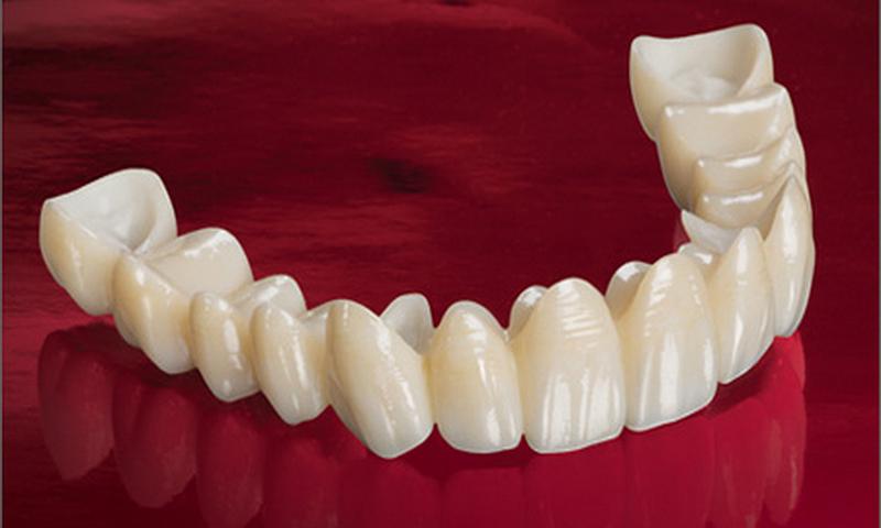 protese dentaria fixa porcelana e zirconia