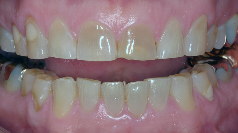 dentes desgastados com resina ou porcelana