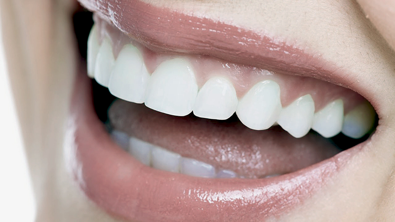 зубы perfect smile veneers