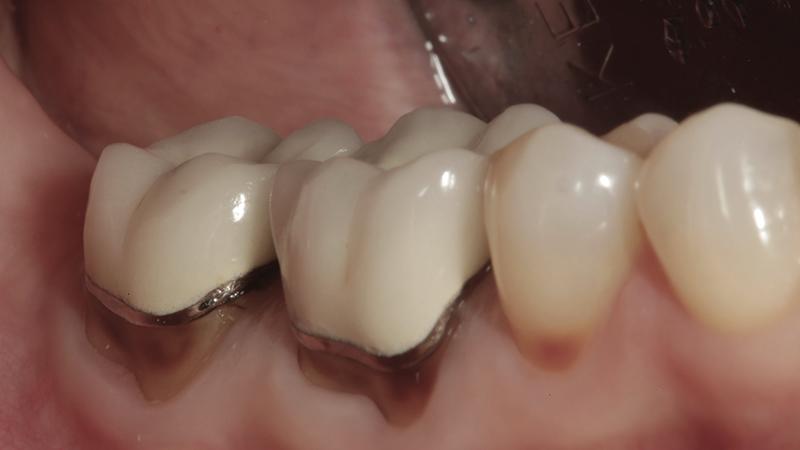 prótese dentária em metal trocar