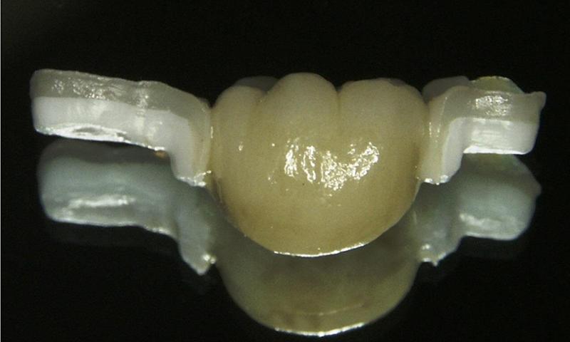 protese dentaria fixa adesiva