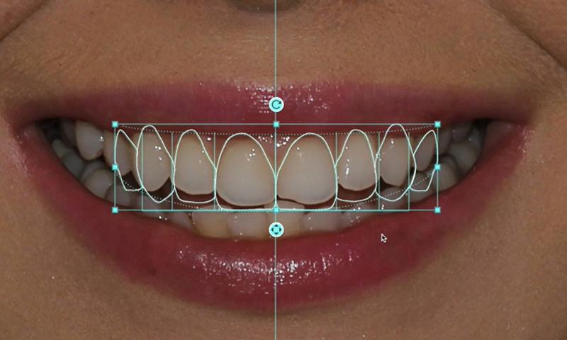 protese dentaria fixa em porcelana simulação