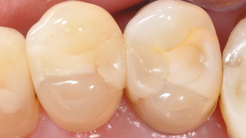 restauração dental amarelamento