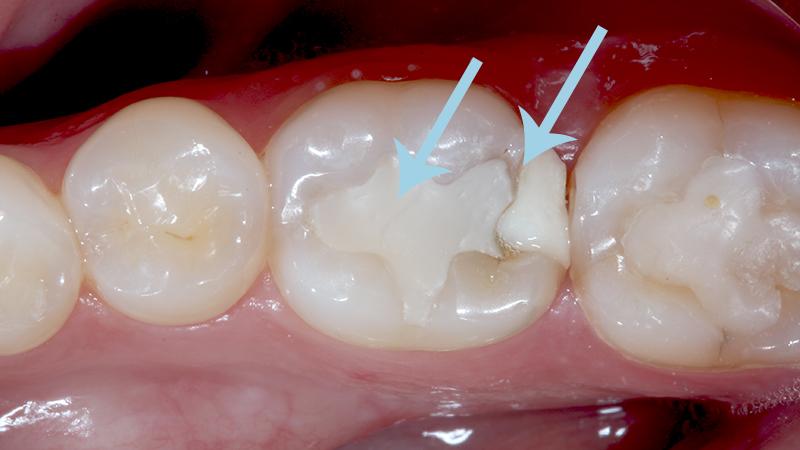 restauração dentaria em resina problemas