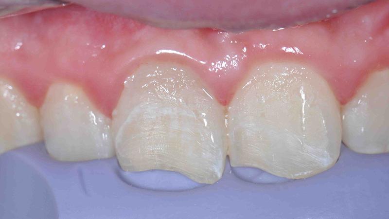restauração em resina dente anterior