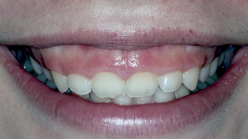 sorriso gengival alto gengivectomia
