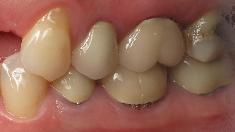 trocar coroa dentária prótese dente posterior