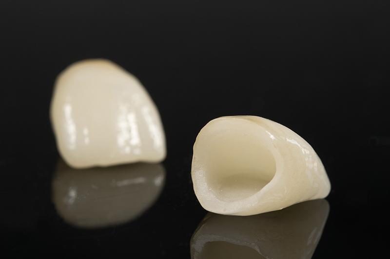 trocar prótese dental em porcelana pura