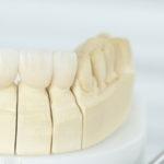 7 dicas para trocar sua prótese dentária fixa em porcelana, sem erros.