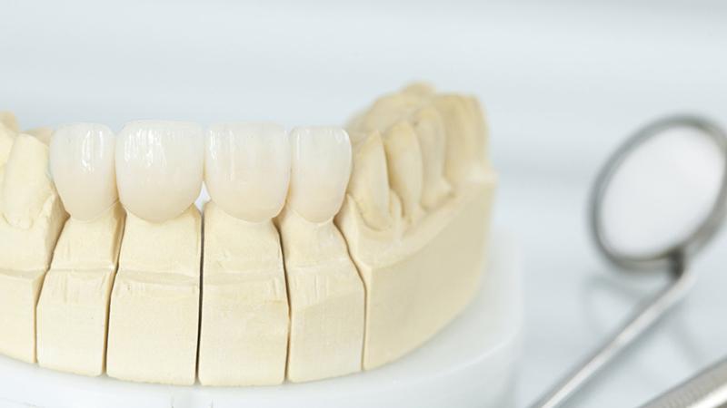 7 dicas para trocar prótese dentária fixa