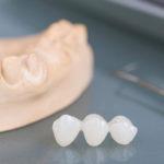 Prótese dentária provisória: conheça os tipos e cuidados durante o uso.