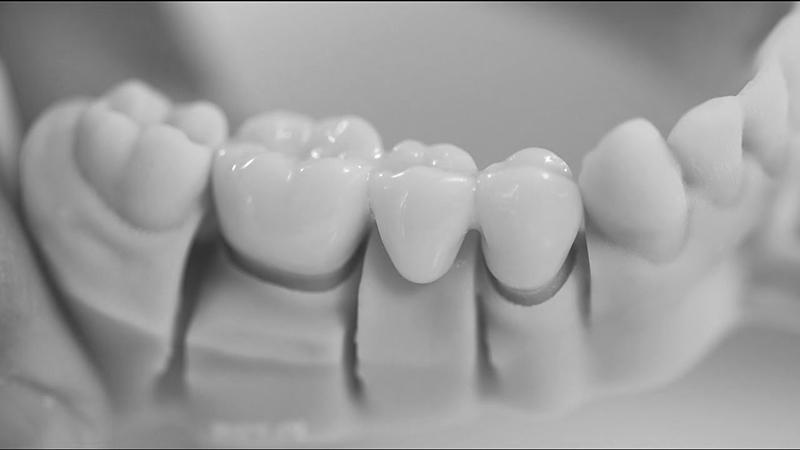 prótese dentária provisória tipo pôntico