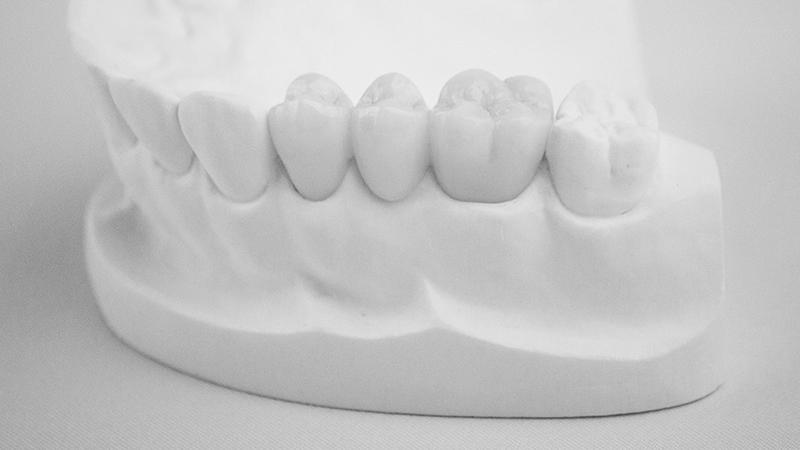 prótese dentária provisória trocar