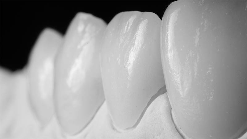 faceta dentaria laminada combinada com prótese dentaria fixa