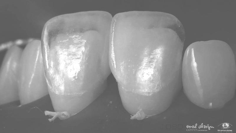 lente de contato dental laminada