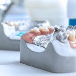 Prótese dentária móvel: os tratamentos e tipos de pontes removíveis.
