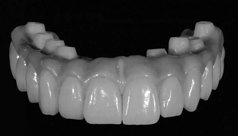 protese dentaria protocolo em zircônia