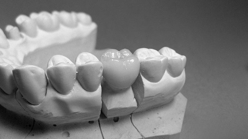protese dentaria unitaria em zirconia