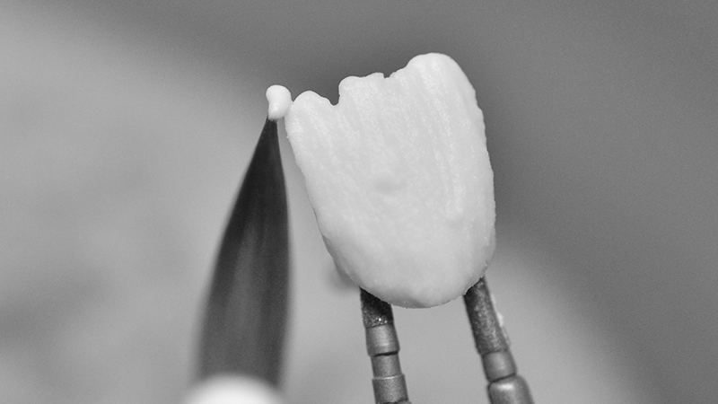 protese dentaria zirconia com porcelana