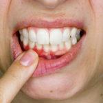 Cárie em raiz dentária exige tratamento rápido e específico.