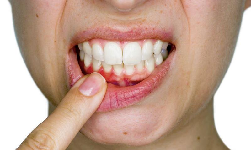 cárie em raiz dentária tratamento