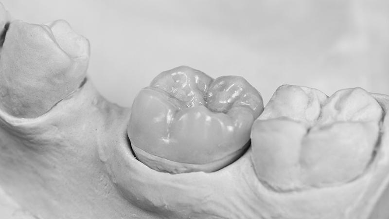overlay restauração dental