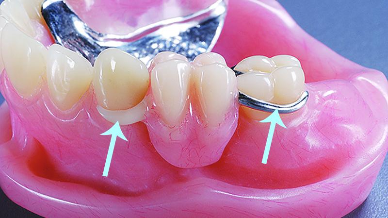 protese dentaria movel com grampo estético e invisível