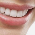 Restauração dental conta com materiais mais estéticos e duráveis.