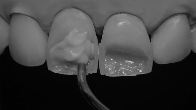 restauração dental direta em resina
