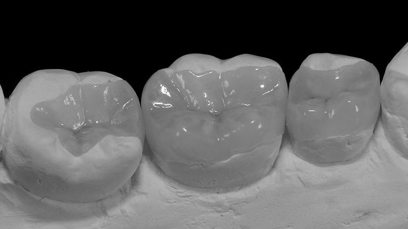 restauração dental em porcelana