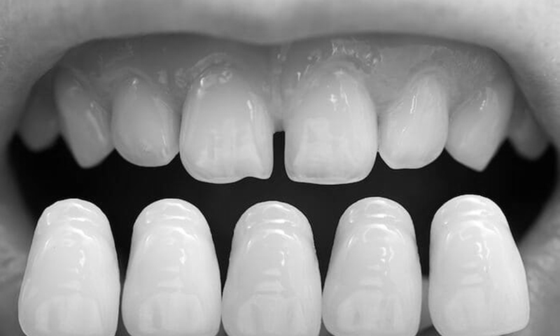 laminado cerâmico lente de contato dental