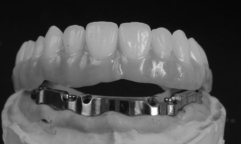 protese dentaria overdenture