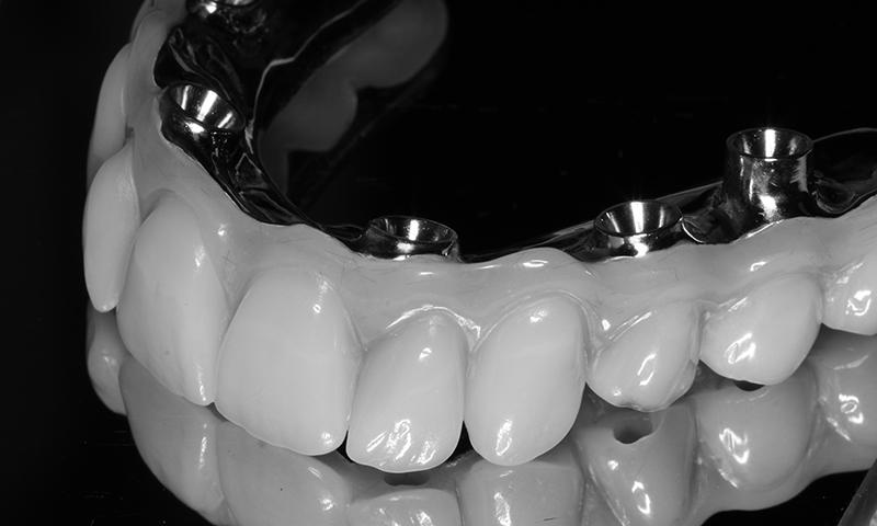 protese protocolo em resina acrílica