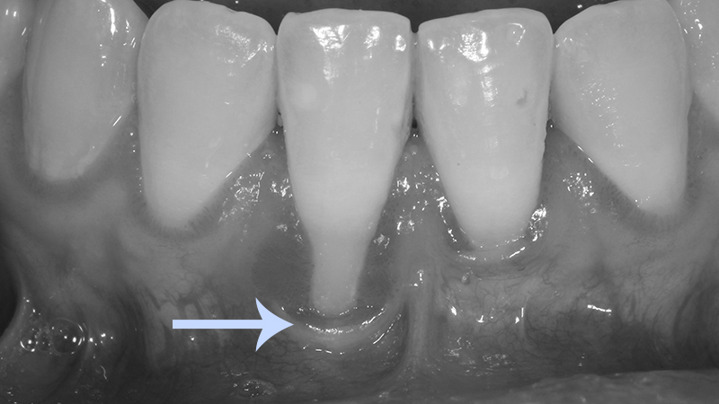 retração gengival dente anterior incisivo inferior