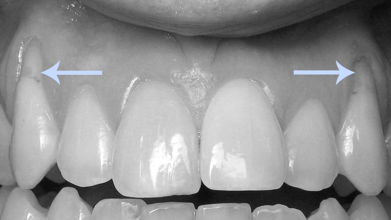 tratamento raiz dentária exposta