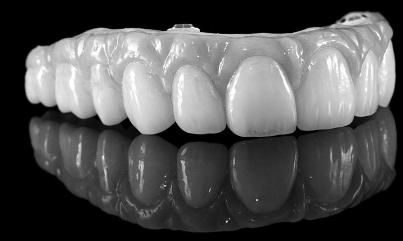 dentadura fixa em porcelana e zircônia