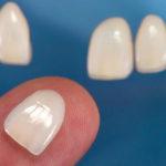 Facetas e lentes de contato dental são reversíveis até certo ponto.