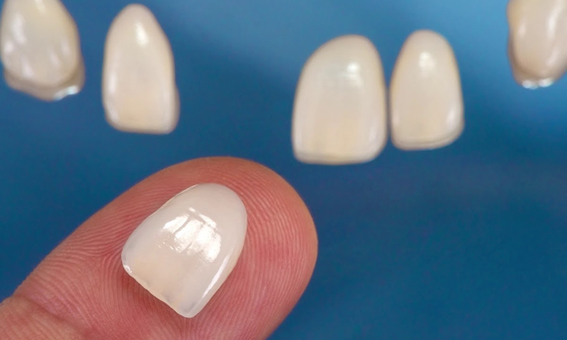 lente de contato dental faceta reversível reversibilidade remover