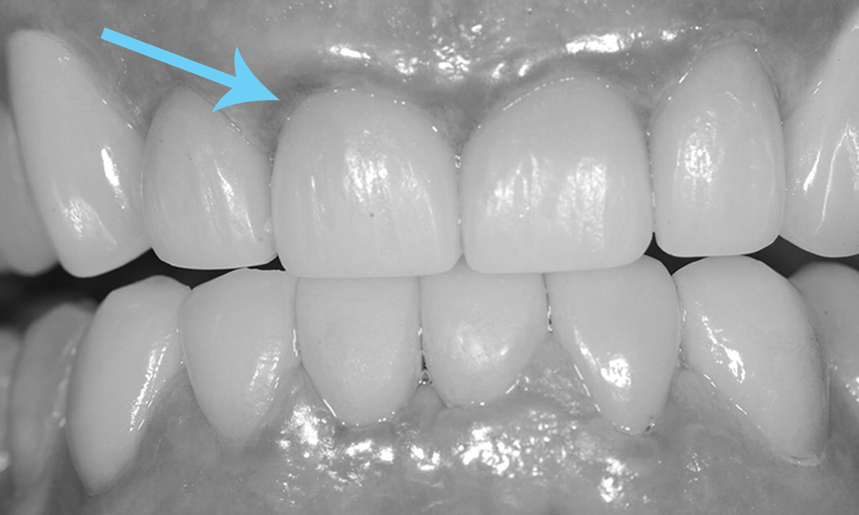 faceta de porcelana dentista porto alegre
