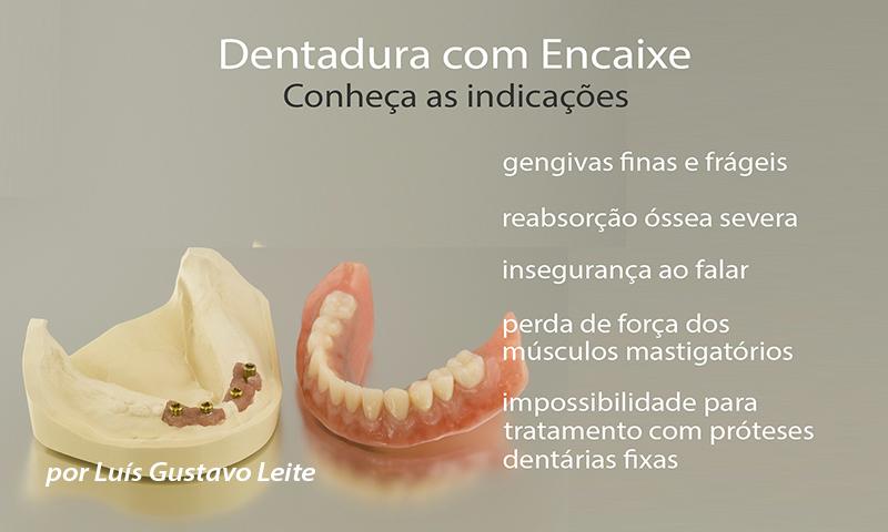 dentdaura fixa indicações e vantagens