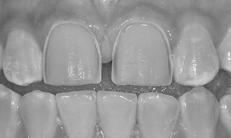 faceta de porcelana desgaste dentário risco e problemas