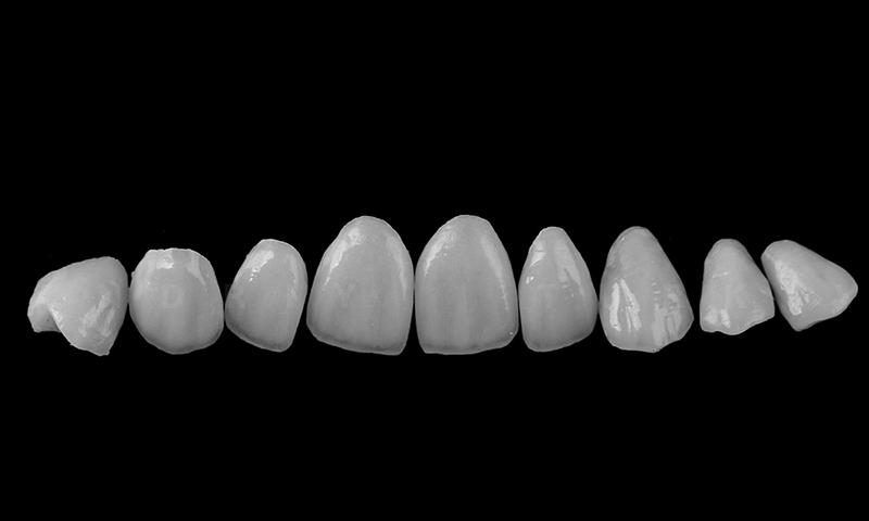 faceta de porcelana transformação do sorriso