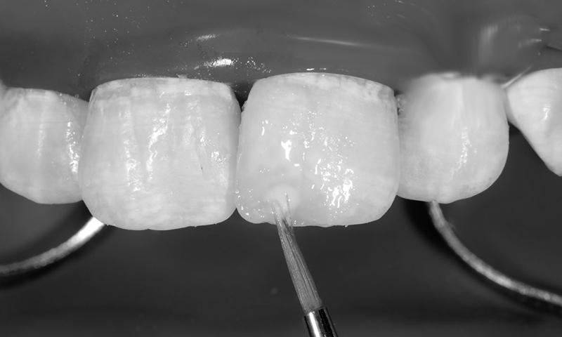 faceta dentária em resina