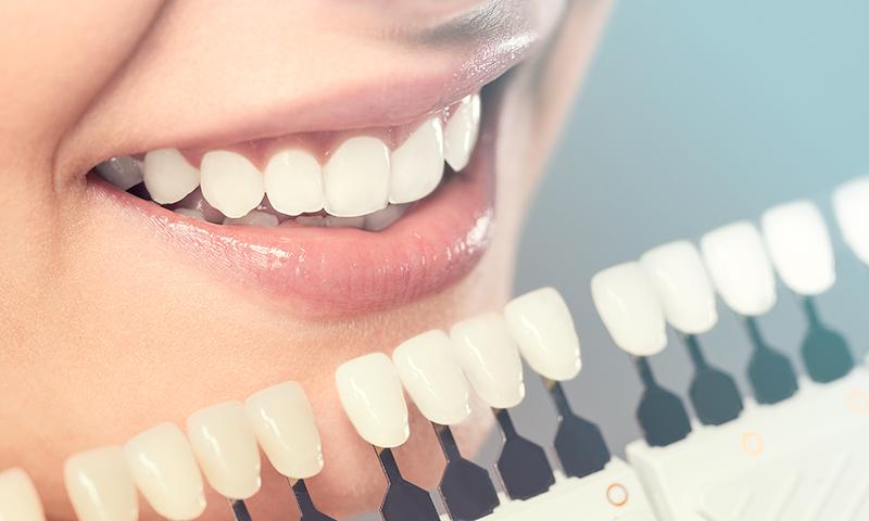 faceta dentária post blog
